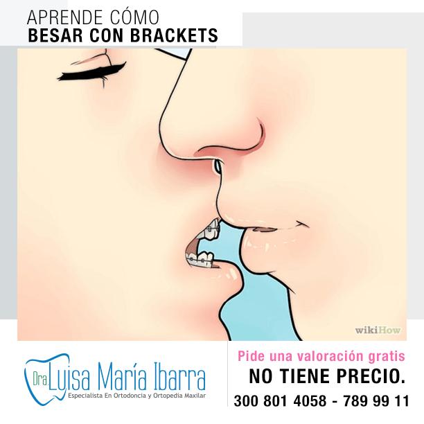 luisa-maria-ibarra-ortodoncia-monteria-turismo-en-monteria-salud-como-besar-con-brackets-2