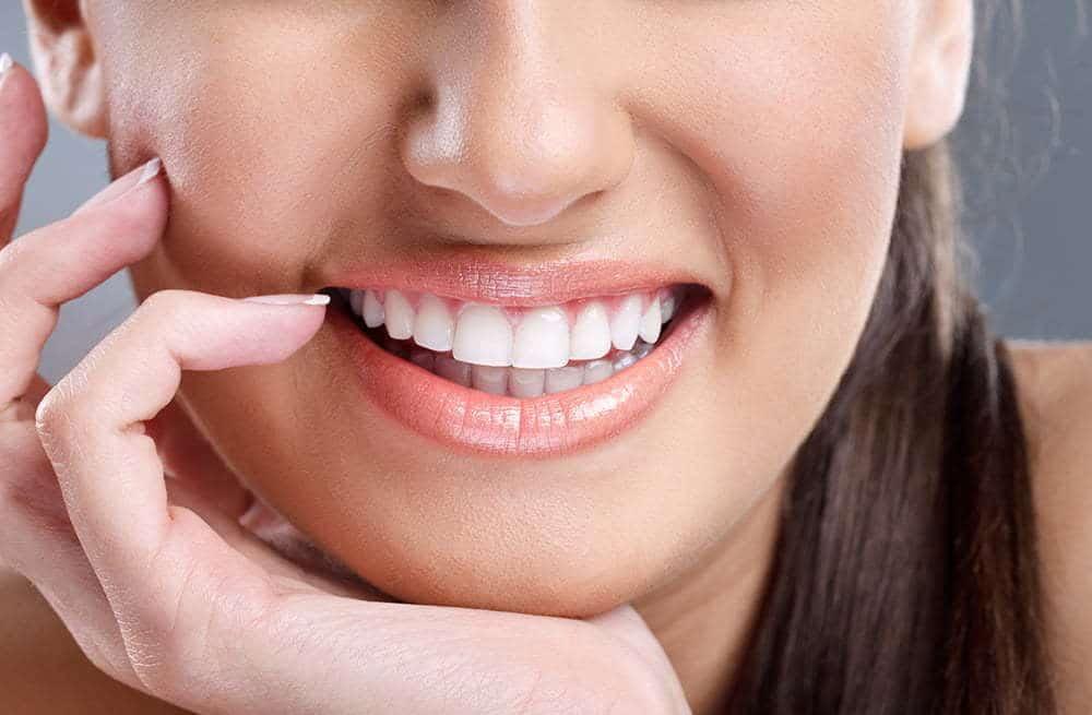 Luisa maria ibarra blanqueamiento dental en monteria