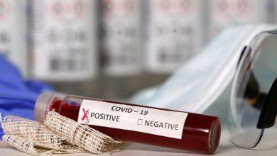 UniCor compra reactivos para hacer pruebas de Covid