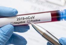 Por qué pacientes recuperados de Covid19 vuelven a dar positivo