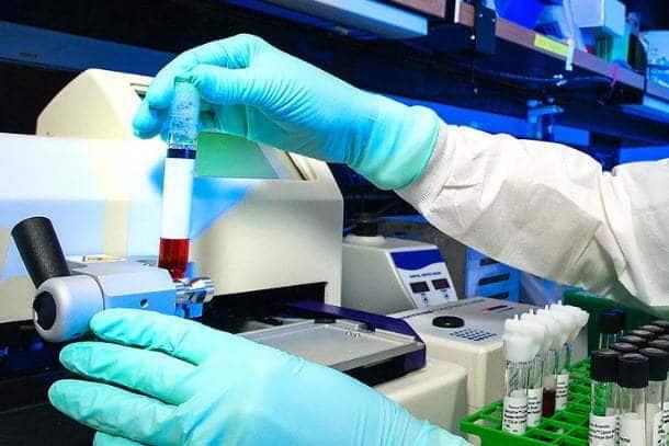 ¿En qué consiste el estudio de seroprevalencia de Covid19?