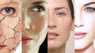 ¿Qué tipo piel es más propensa a las arrugas?