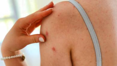 ¿Cómo eliminar el acné corporal?