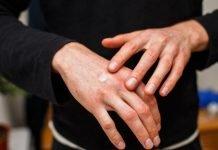 Las 5 alergias más raras y poco frecuentes